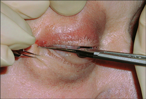 Lateral Canthotomy - JAMA Network