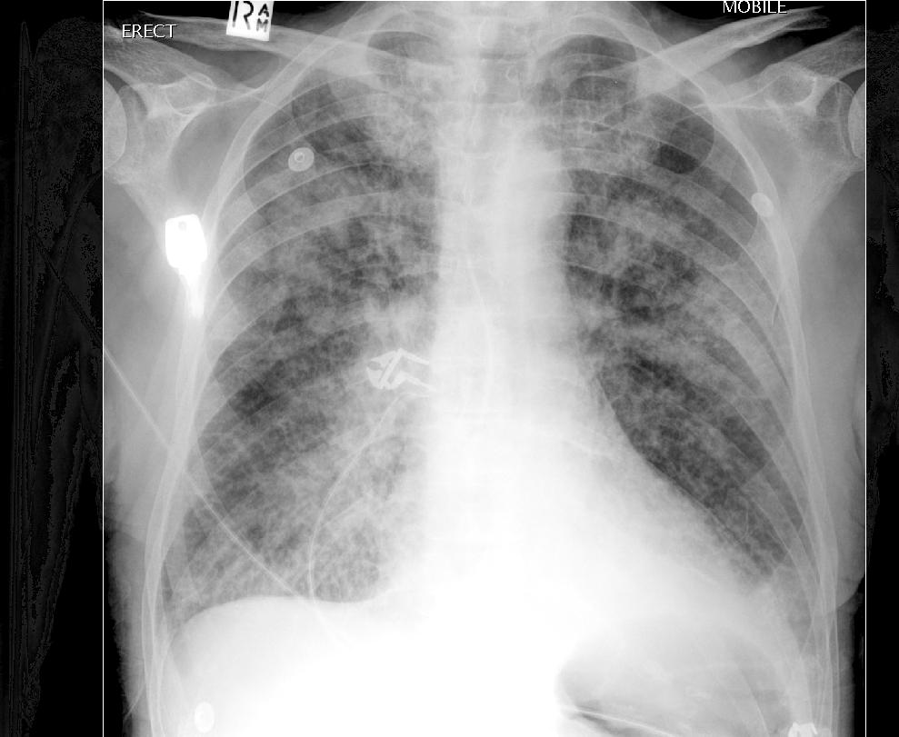 Acute Pulmonary Edema - radpod.com
