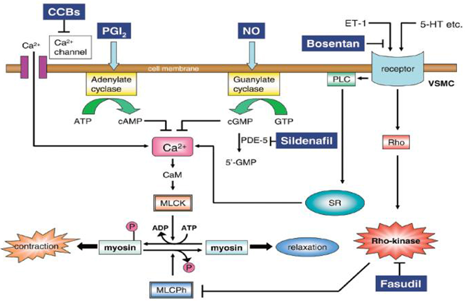 How Sildenafil Works In Pulmonary Hypertension