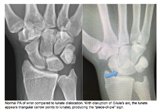 Lunate Dislocation Graphic 3 - Schwartz DT