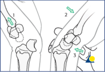 Lunate Dislocation Graphic 6