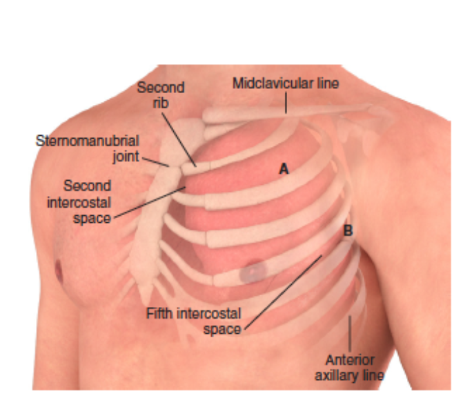 Chest Wall Anatomy - Roberts + Hedges