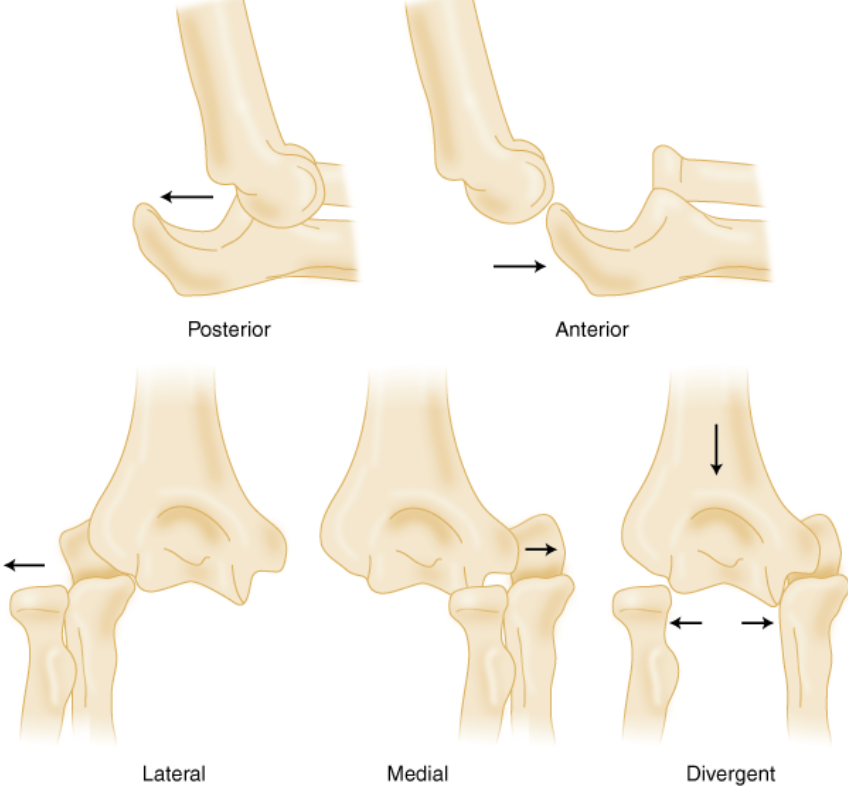 Dislocation Classification
