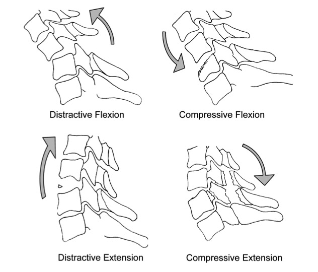 CspineInjuries_Figure13