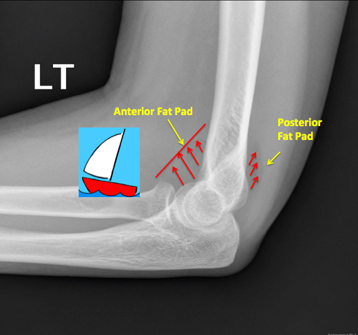 X-ray Elbow: Sail Sign