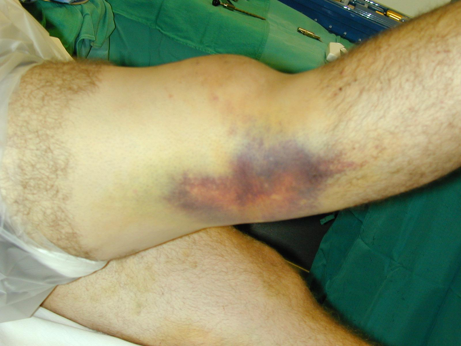 Knee Dislocation (emedicine.medscape.com)
