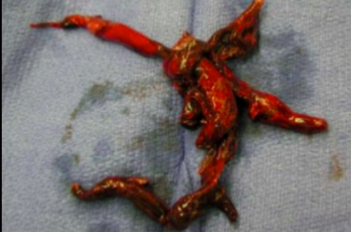Screen Shot 2016-06-03 at 7.03.44 AM