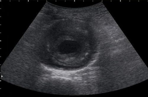 US Short Axis: Abdominal Aortic Aneurysm (emergencyultrasoundteaching.com)