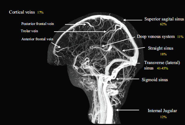MRV of the Cerebral Venous System (Saposnik 2011)