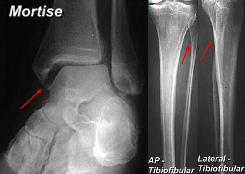 Ankle Fractures – Core EM
