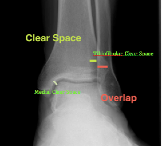 Normal AP Ankle X-Ray (http://posterng.netkey.at/)