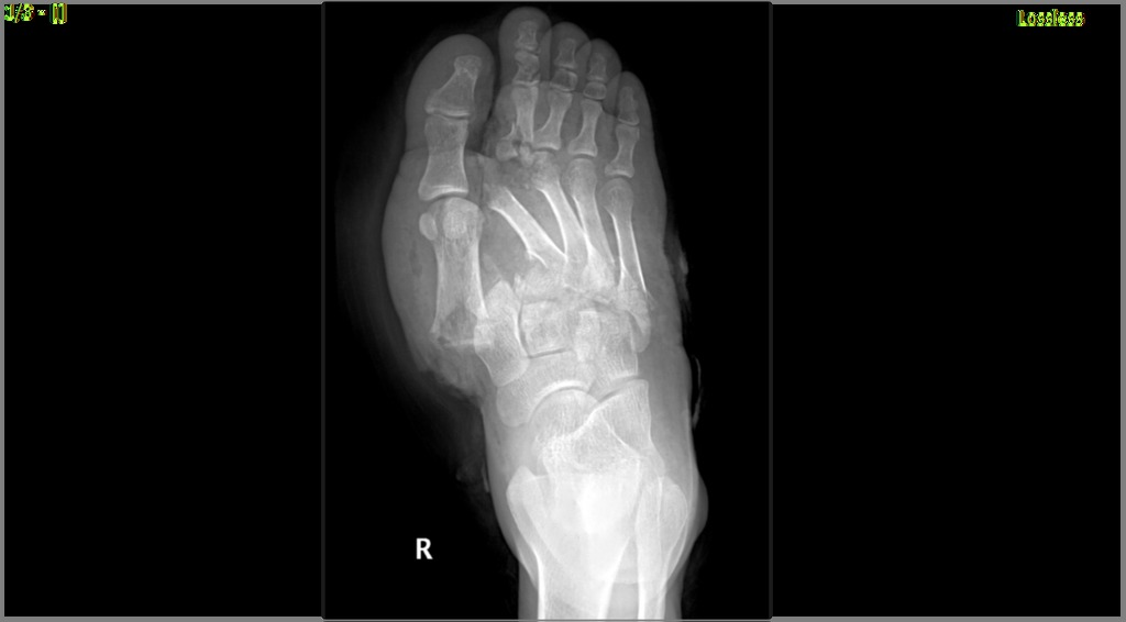 Divergent Lisfranc Injury