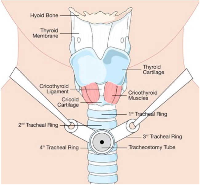 Common Tracheostomy Issues Core Em