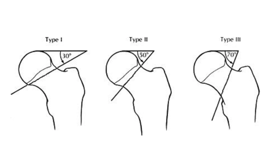 Femoral neck fractures core em pauwels classification intranetmu ccuart Gallery