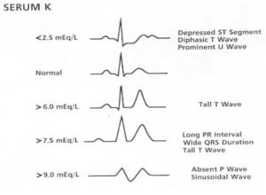 EKG Changes - LITFL
