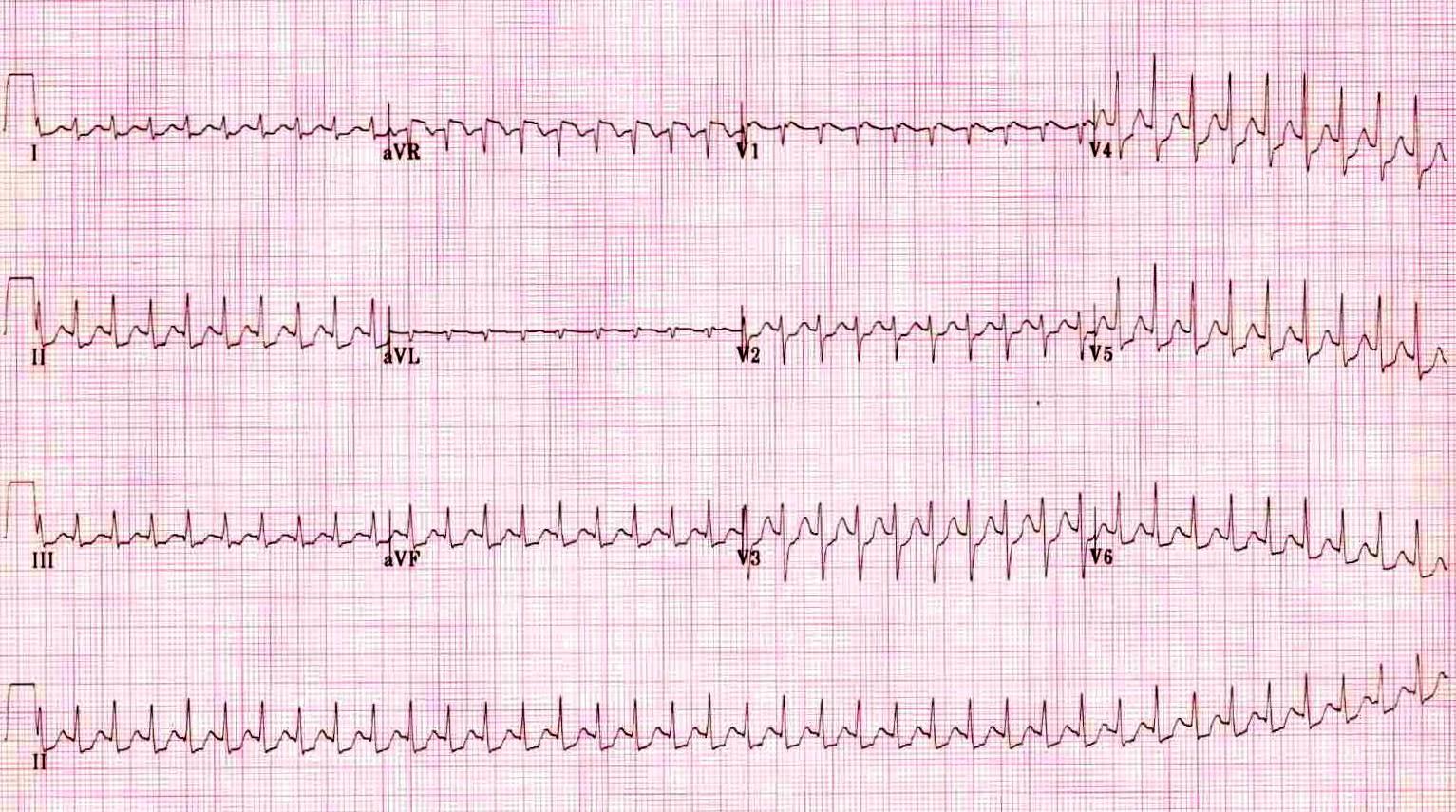 Paroxysmal Supraventricular Tachycardia Ecg Strip