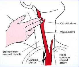 Carotid Sinus Massage
