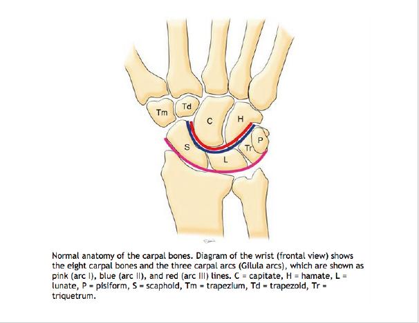 Lunate Dislocation Graphic 2