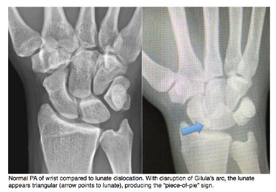 Lunate Dislocation Graphic 3 - Schwartz DT