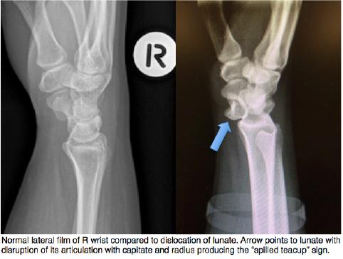 Lunate Dislocation Graphic 5