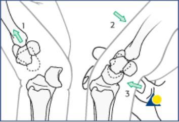 Lunate Dislocation Graphic 6
