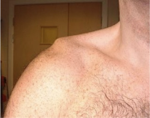 AC Joint Injury (www.shouldersurgery.com)