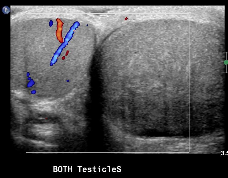 testicular torsion ultrasound. right testicular torsion ultrasound w