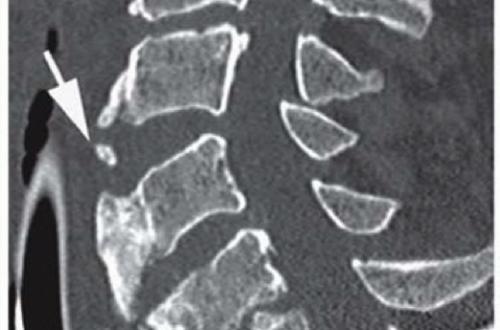 retrolisthesis of spine