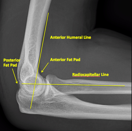 X-ray of Normal Elbow Alignment