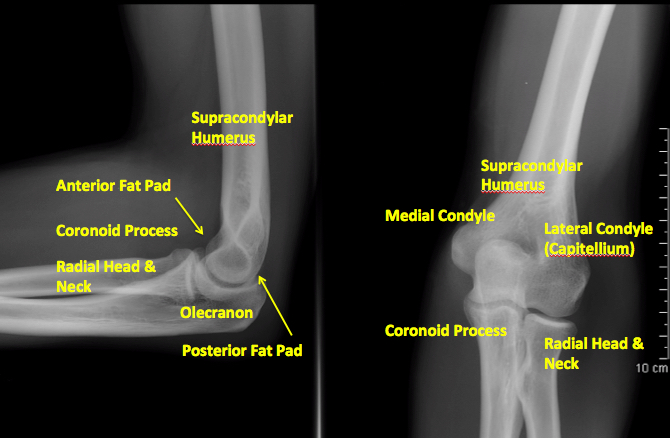 X-ray of Normal Elbow Anatomy