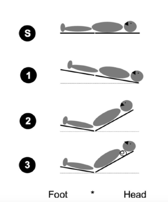 Bed-Up-Head-Elevated Position for Emergent Intubation