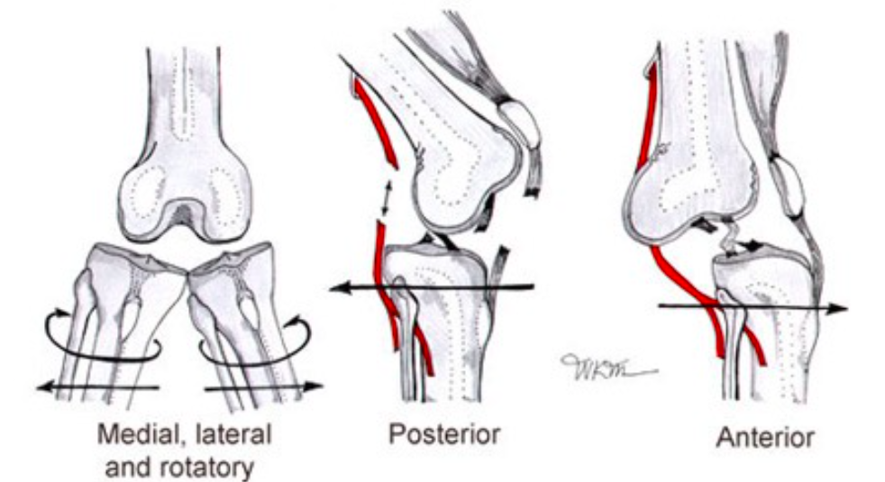 Knee Dislocations (www.emedicinehealth.com)