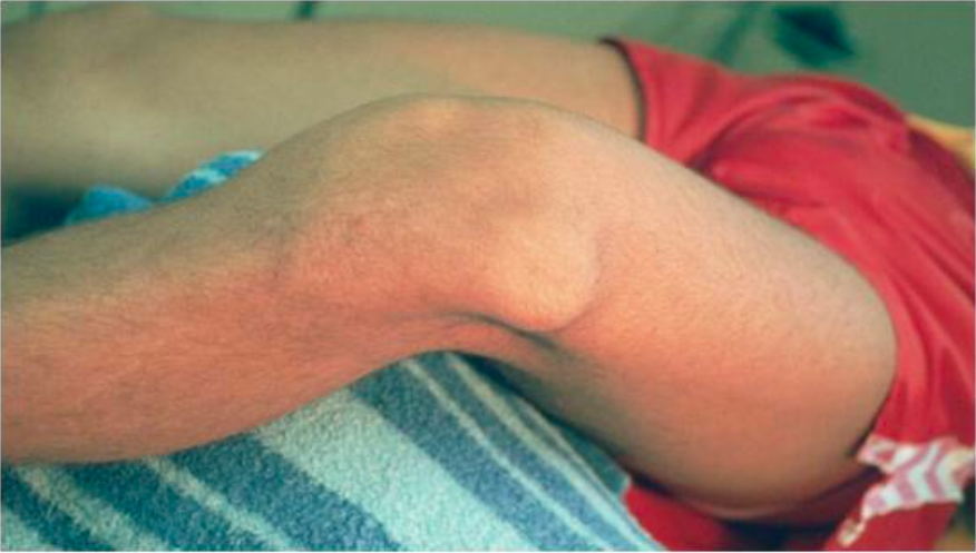 Patella Dislocation (www.exceptyou.org)