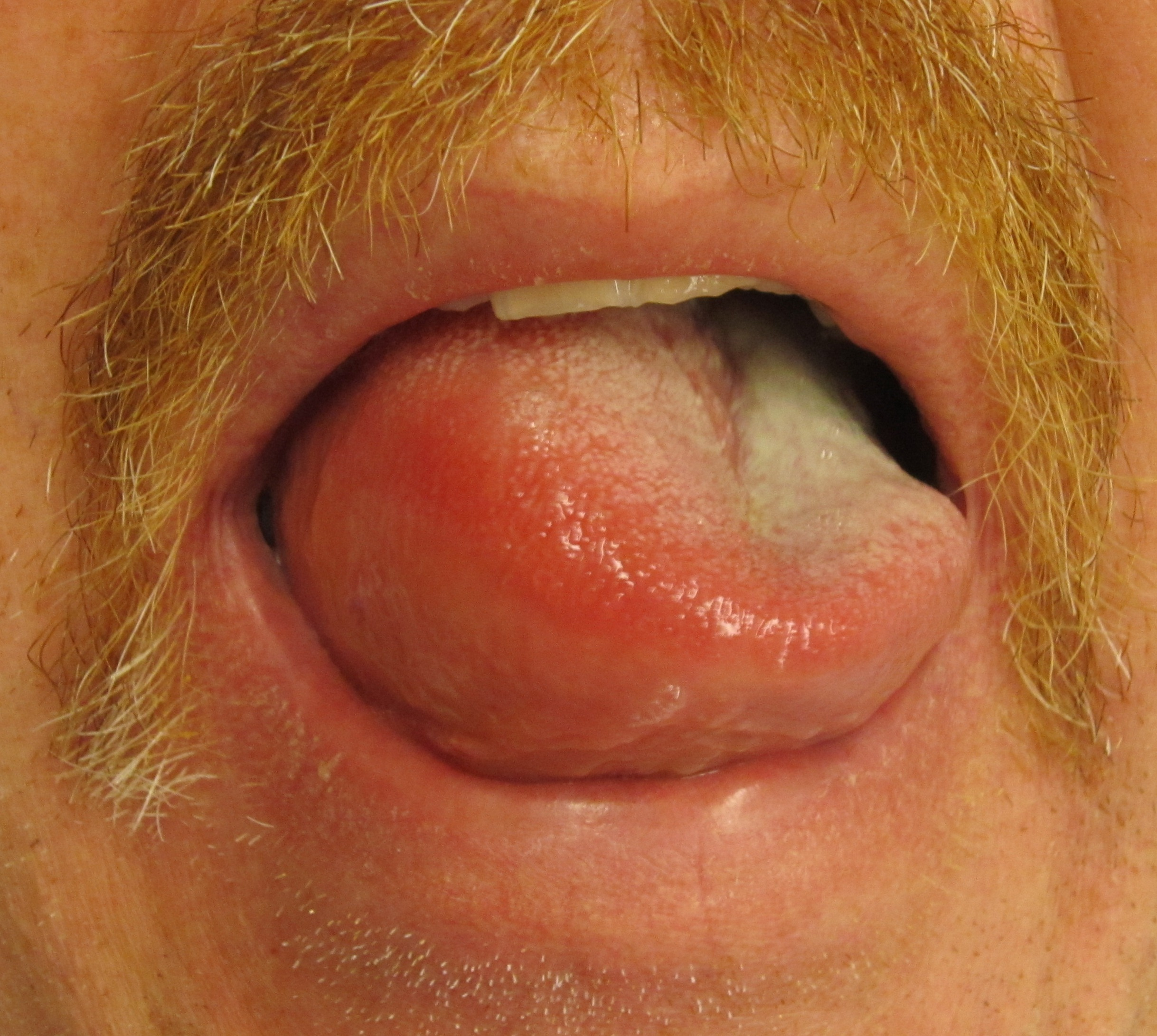 Angioedema Tongue