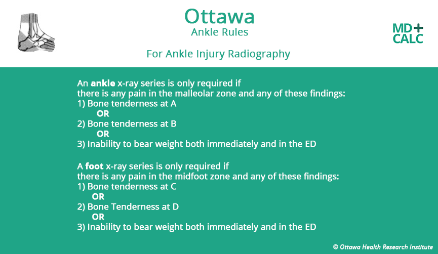 the ottawa ankle rules nursing essay Nurses advocate five wise recommendations to eliminate unnecessary practices and improve patient outcomes the australian college of nursing (acn) has added its voice to the next wave of the choosing wisely initiative, urging nurses to continue to send a strong message of advocacy for their patients' best interests.