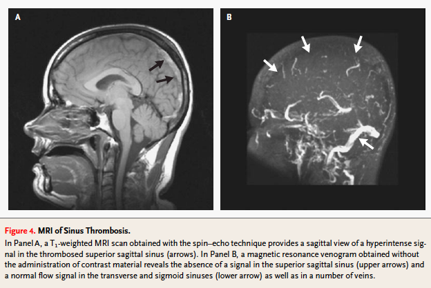 Cerebral Venous Thrombosis on MRI (Stam 2005)