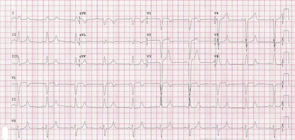 EKG with LBBB