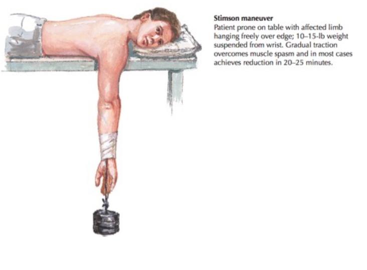 Stimson Maneuver (Netter's Concise Orthopedic Anatomy 2nd Edition)