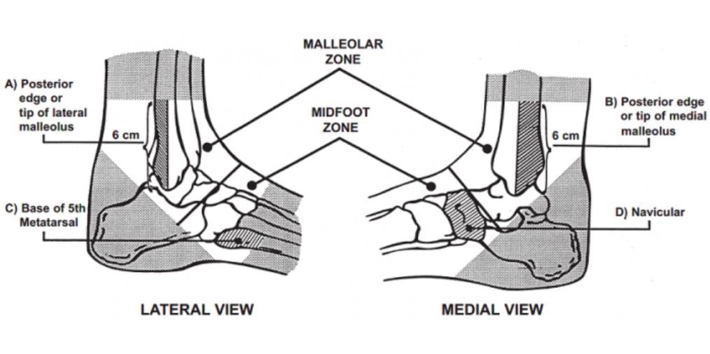 Ottawa Ankle Criteria (Stiell 1992)