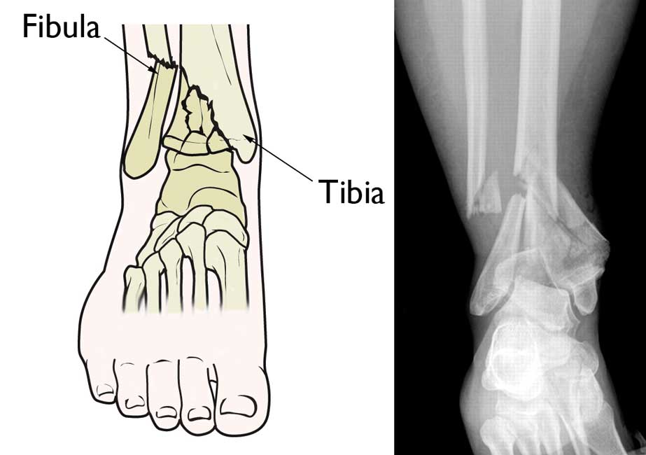 Pilon Fracture (http://orthoinfo.aaos.org/)