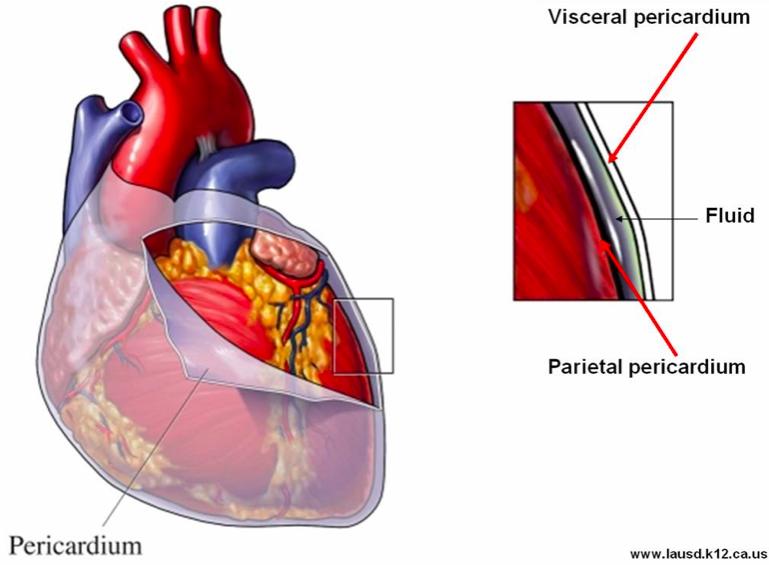 Pericarditis – Core EM