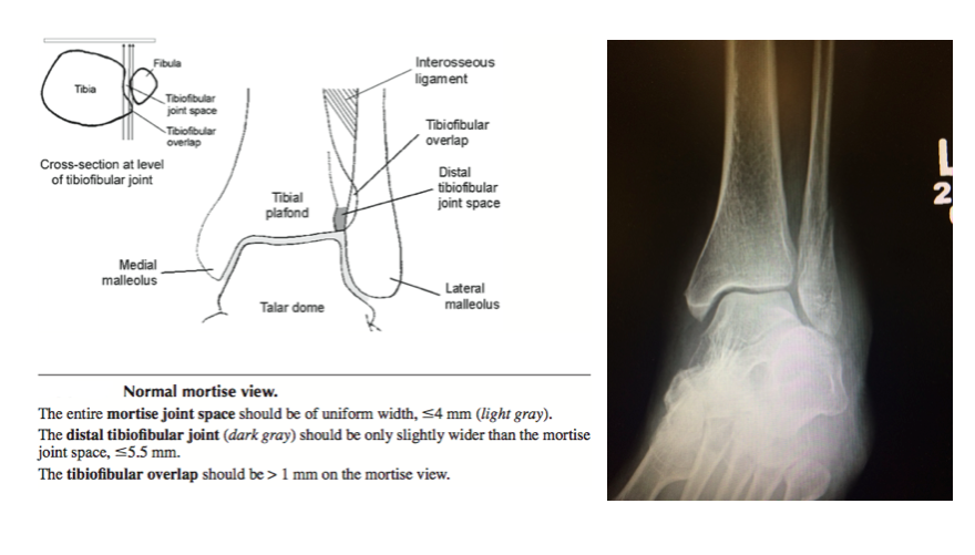 Ankle Mortise View (Figure from Schwartz 2008)
