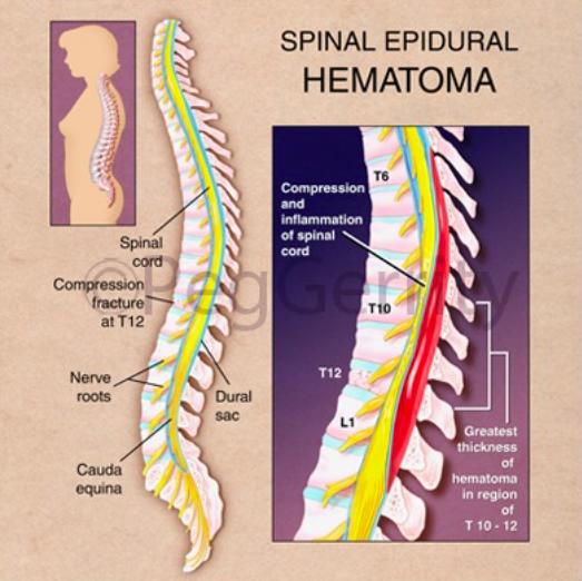 spinal-epidural-hematoma-nordenergi-org