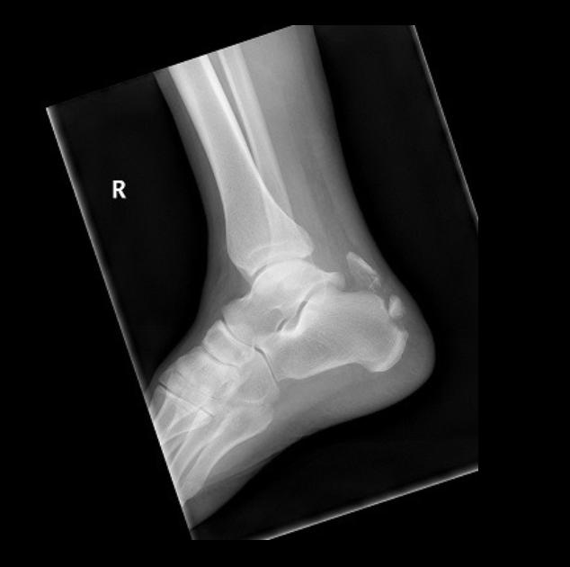calcaneal fracture