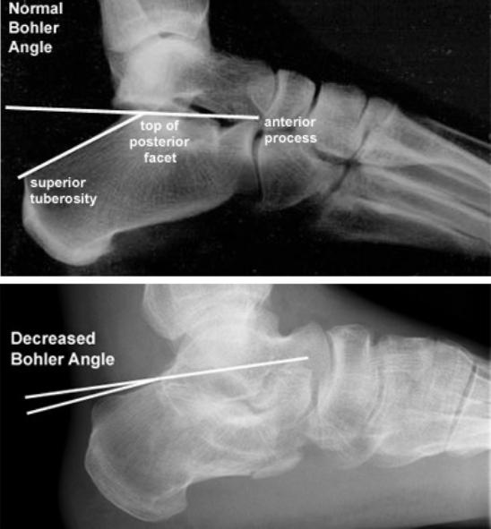 Bohler Angle (orthobullets.com)
