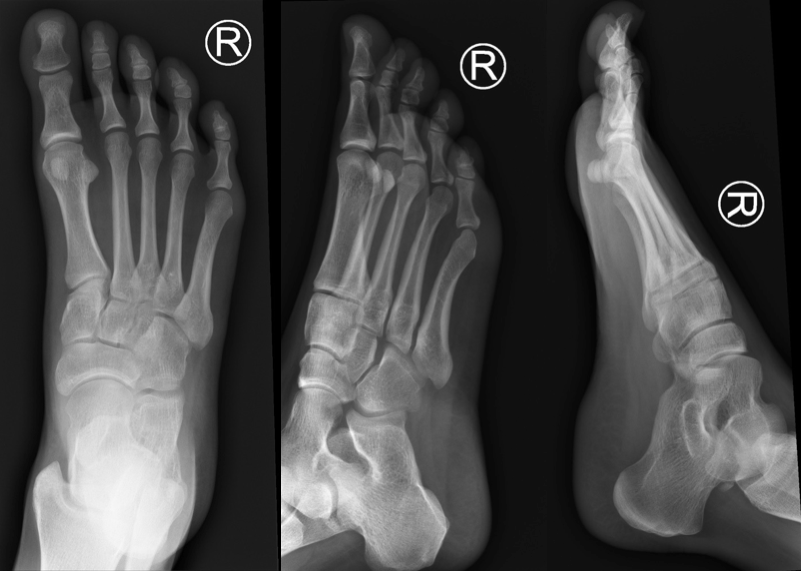 Normal Foot X-ray Series (Case courtesy of Dr Andrew Dixon, Radiopaedia.org. From the case rID: 36688)