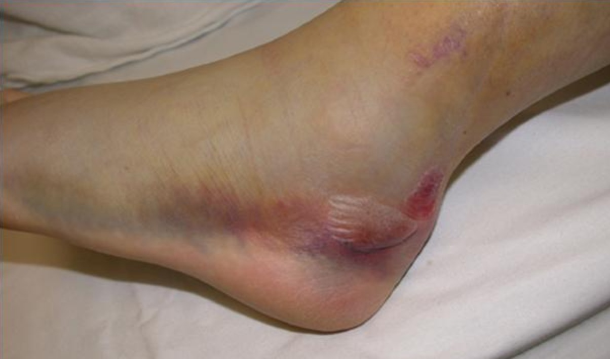 Ecchymosis after Calcaneus Fracture (orthopaedicsone.com)