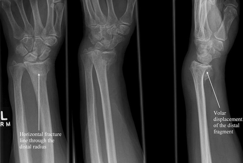 Distal Radius Fractures – Core EM