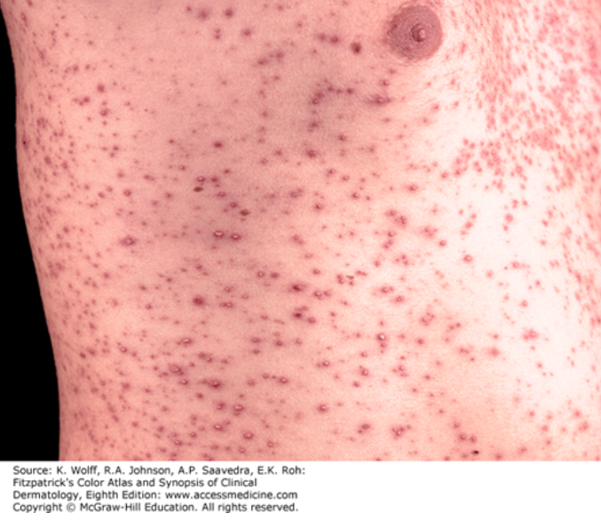 herpes simplex on penis - Herpes Center