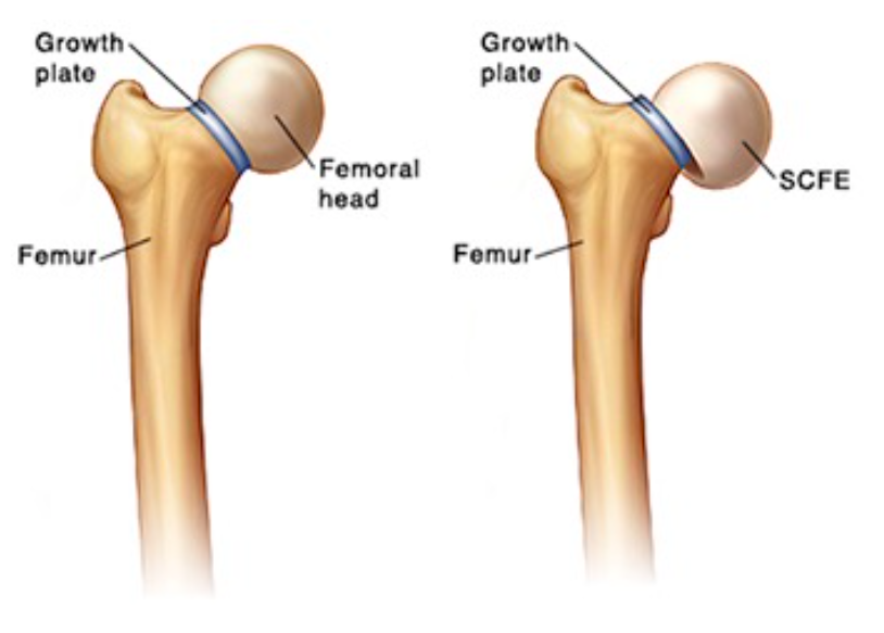 slipped capital femoral epiphysis radiology